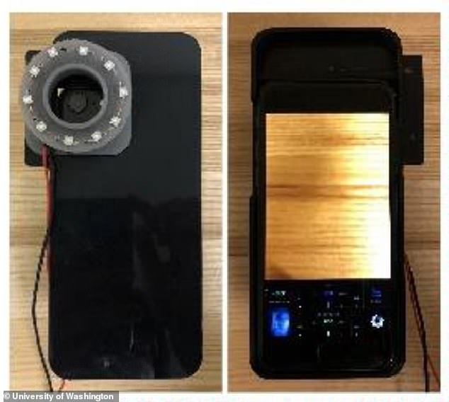 Cell phone cameras equipped with a black light LED device are able to detect bacteria within someone's mouth or on their skin. The device was developed by researchers at the University of Washington