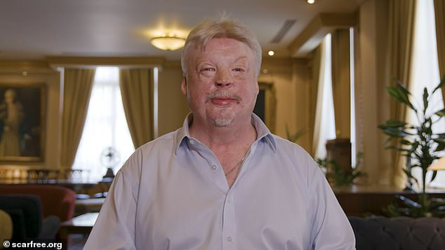 Simon Weston, a Welsh veteran of the British Army, recovered from severe burn injuries suffered during the Falklands War