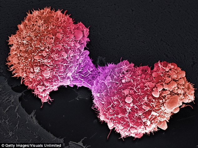 Physiomics owns a virtual tumour software which is used to predict the effect of cancer drugs