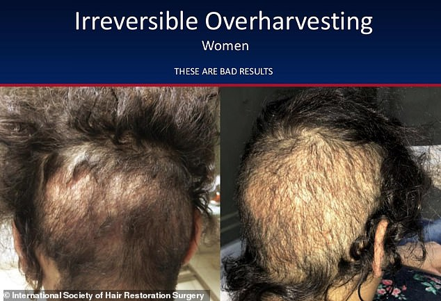 The perils of bad hair transplants are not limited to men – these photos show a woman whose surgeon took too many hair follicles from the back of her hair and as a result she was left with thinner hair than before