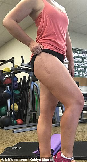She is pictured proudly showing off her scar after going under the knife inOctober 2016 and the following May