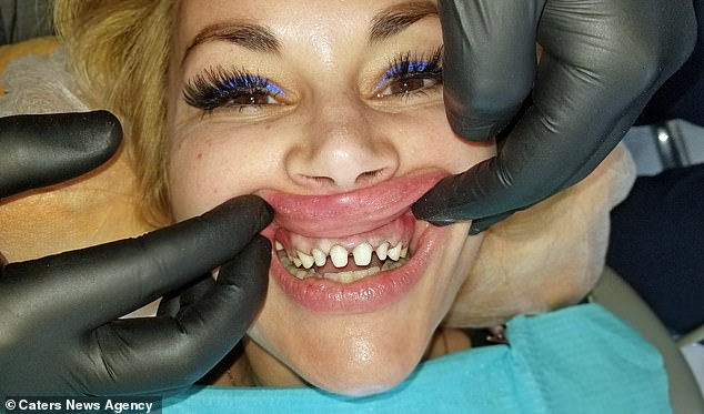 Ms Iglesias had a month of work on her teeth. This included having crowns, which were put on after her real teeth were filed down (pictured)