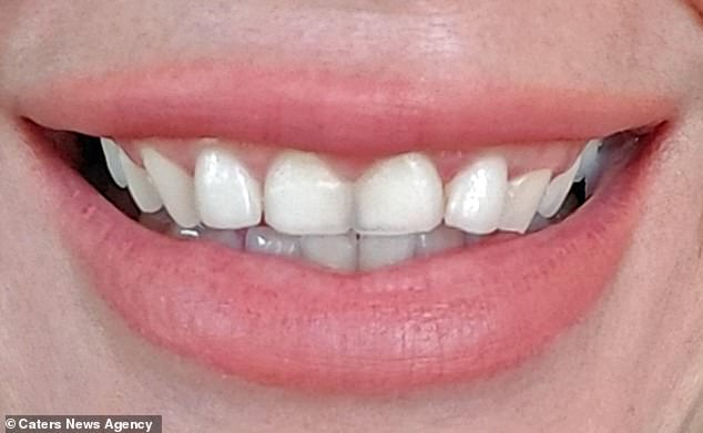 Ms Iglesias was self conscious of her teeth but feared dental work after a painful root canal 20 years ago. She decided to fix her teeth this year