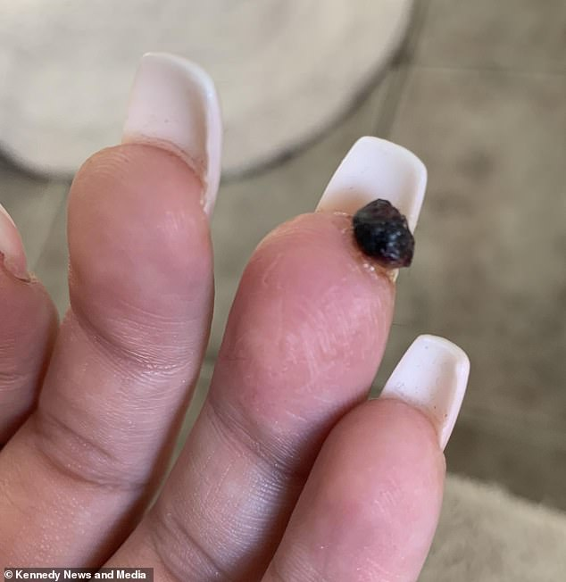 What started as a small bruise turned into a blackened nodule (pictured)