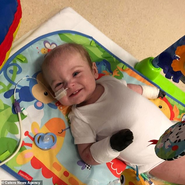 Doctors wanted to 'wait and watch' to see if they could save some of Oliver's legs. However, his mother begged the medics to get the operation over with to ensure her son would survive