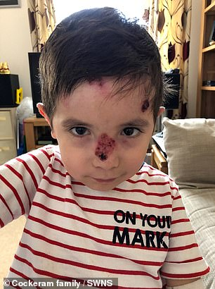 Jamie often loses layers of skin from his face (pictured) due to the genetic disorder recessive epidermolysis dystrophic bullosa