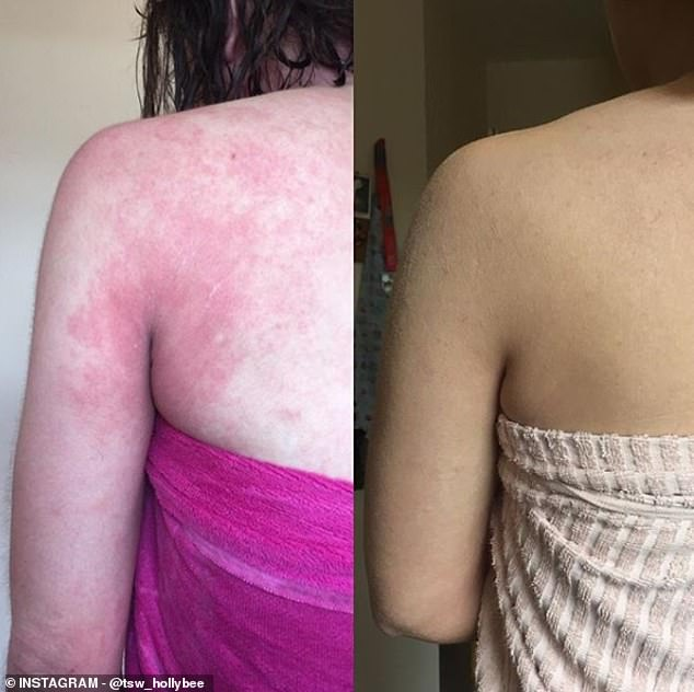 Ms Broome's back is pictured left, while using steroid cream, and right, after stopping
