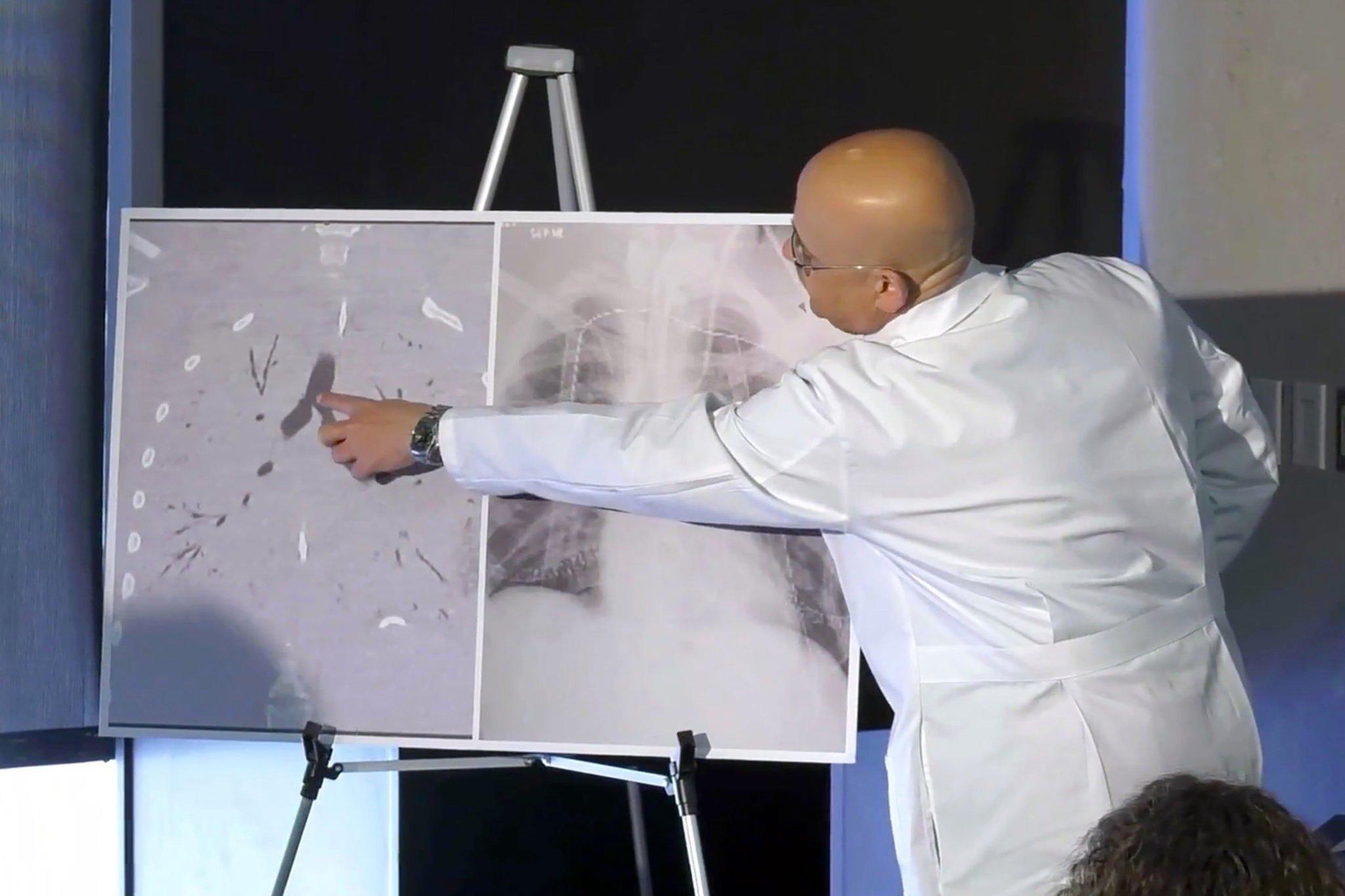 Dr Hassan Nemeh, Surgical Director of Thoracic Organ Transplant, shows areas of the patient's lungs