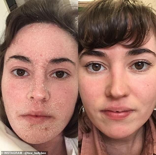 Holly Broome, whose body was left red raw due to eczema, has made a dramatic recovery by ditching steroid creams and showering just once a week. She is pictured a year apart
