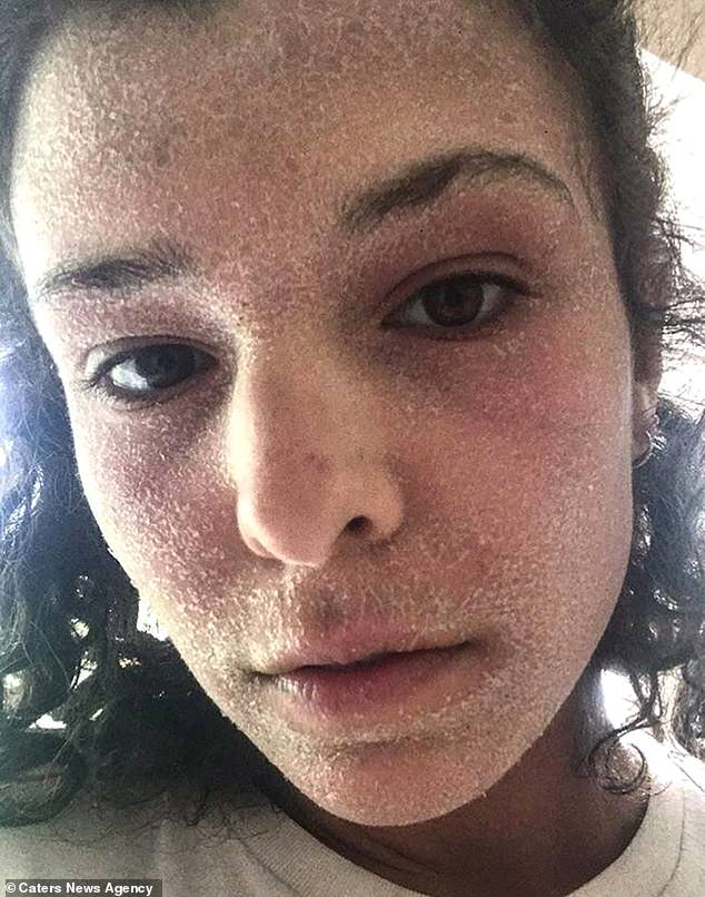 Alice Burleigh, 23, ditched steroid creams she relied on for her eczema in April this year. She suffered withdrawal as a result, making her skin even worse (pictured)