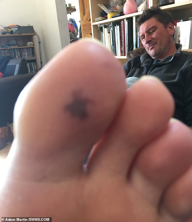 Mr Martin developed a blood blister on his toe - later diagnosed as a Janeway lesion – which is a sign of infective endocarditis