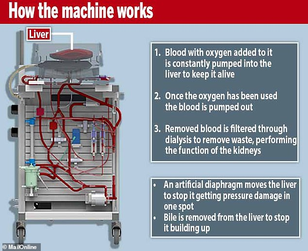 The Liver 4 Life machine has various processes which mimic the actions of the human body, such as blood being pumped through it, an artificial muscle moving it around and a dialysis machine filtering the blood