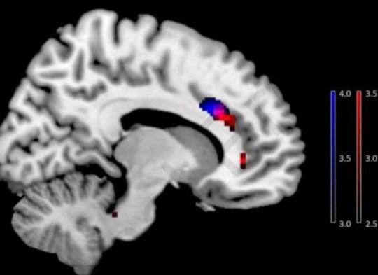 Smart phone brain changer Picture: Horvath et al 2020/Addictive Behaviors