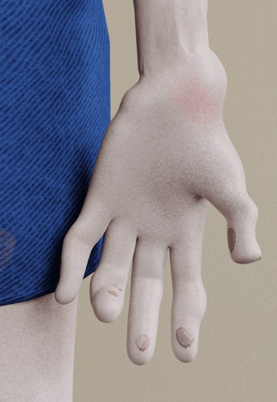 'PlayStation thumb' and blistered fingertips are apparently a curse of gaming (OnlineCasino.ca)