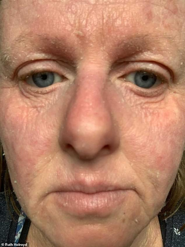 Ruth says she began worrying about overusing steroids due to potential side effects - including high blood pressure and bone damage. Pictured, now, since coming off them