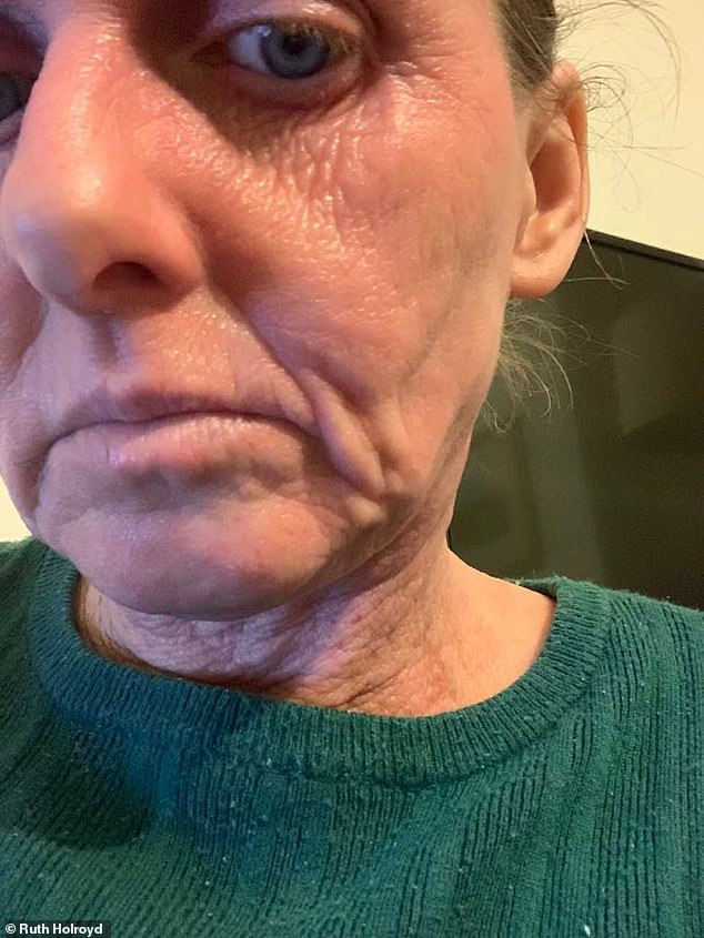 Ruth says people often ask her 'what's wrong with your face?' but she tries to remain positive. Pictured, now