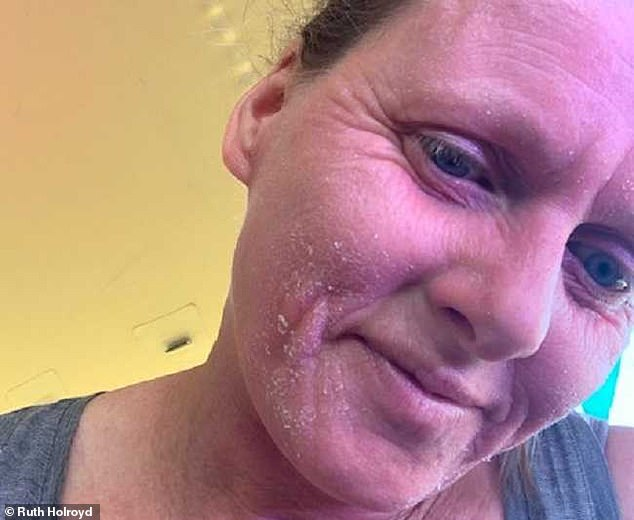 It has been over a year since Ruth has been steroid-free and her skin is improving, and her confidence is growing. Pictured, now
