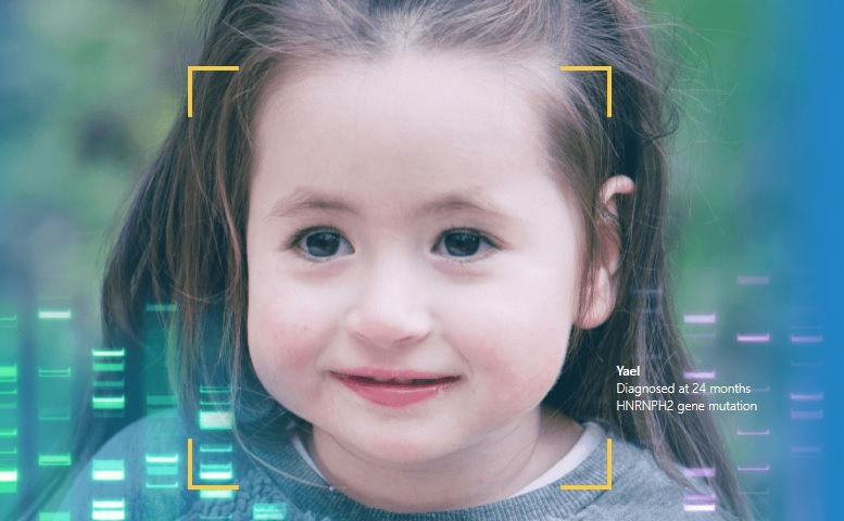 A screenshot from FDNA's website showing the face of a young girl diagnosed at 24 months with the HNRNPH2 gene mutation.