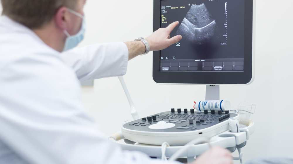 How to Buy an Ultrasound Machine for Your Business