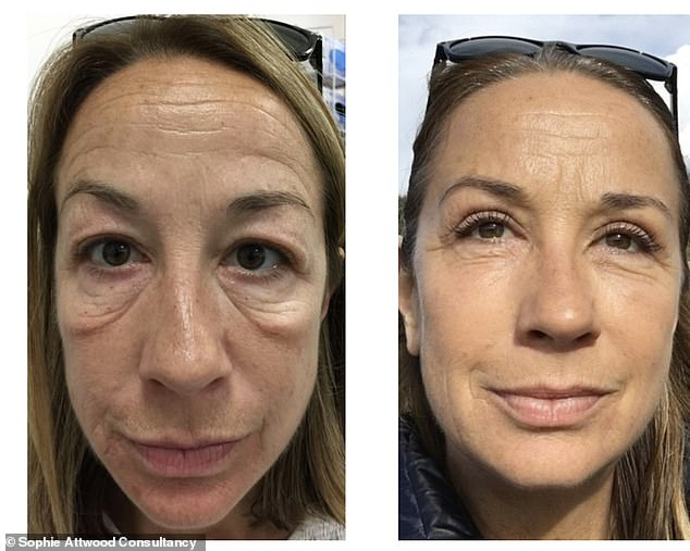 Kimberly James, 51, from Essex, pictured left before the procedure and right after, describes the results of her treatment as 'life-changing'