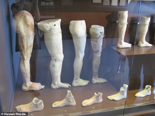 Votive offerings of limbs recovered from the sanctuary of Asclepius at Corinth. These items, carved from stone, were deposited, without the intention of recovery or use for religious purposes, made in the hope of receiving a cure
