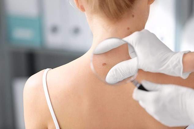 Very urgent skin problems, such as a possible melanoma, are prioritised over less-concerning lesions such as basal cell carcinomas which tend to grow very slowly (file photo)