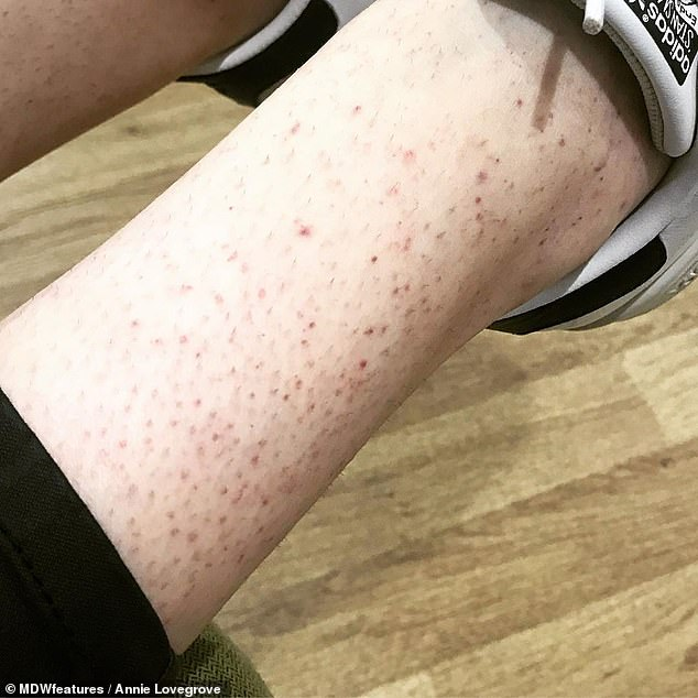 ITP can cause minor bruising around the body and can leave some with a purple-dotted rash calledpetechiae (pictured)