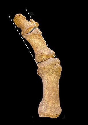 Cambridge researchers believe a change in shoe style during the 14th century, from a rounded toe to a lengthy, pointed tip, drove a rise in hallux valgus