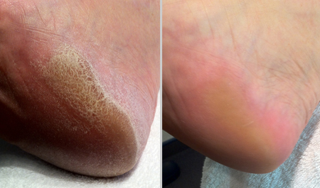Fuß Behandlung 1
