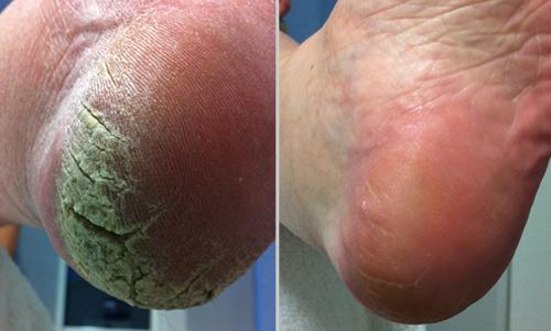 Fuß Behandlung 2