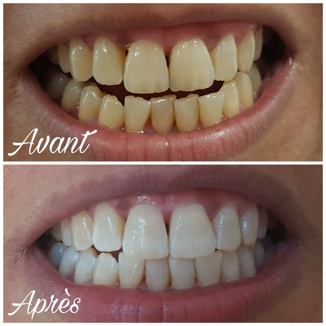 Galerie blanchiment dentaire montpellier
