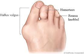 voet-reuma