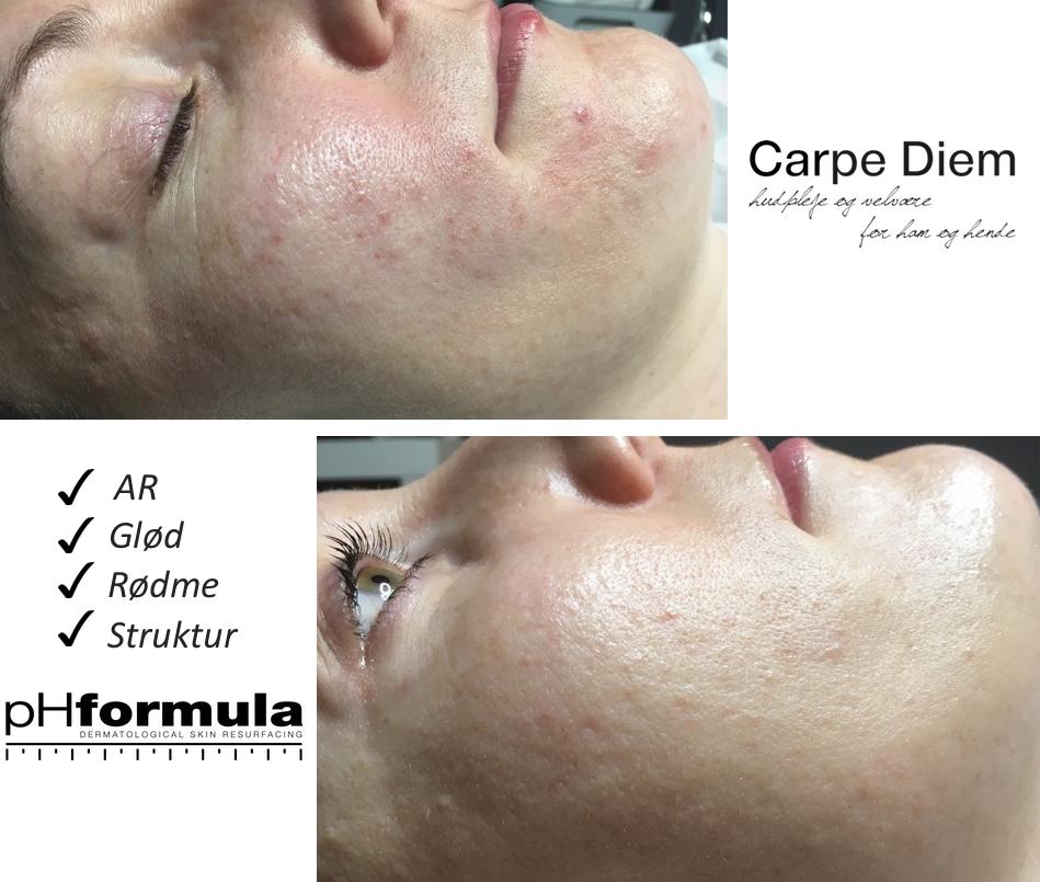 CD4700 uren hud før og efter Carpe Diem
