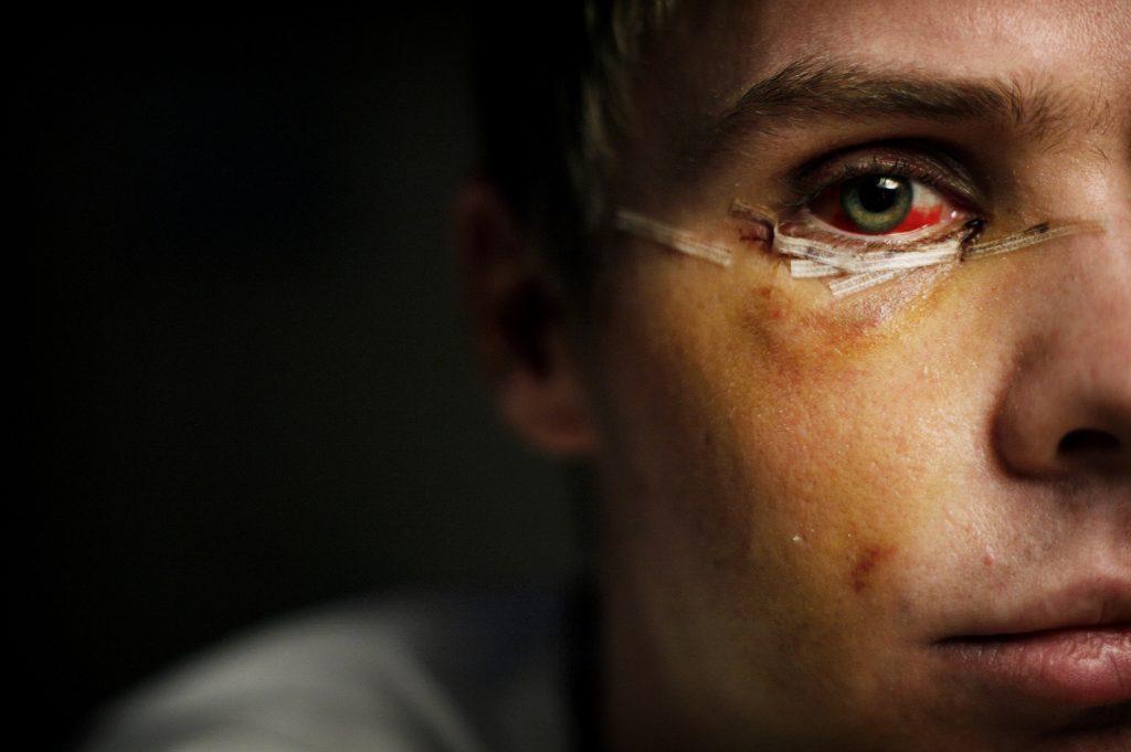 081203/Jakobsberg/misshandel/Vid midnatt den 22 november blev Jesper nerslagen och sparkad medvetslšs nŠr han och hans kamarat lŠmnade en krog i Jakobsberg. PŒ vŠg ut frŒn krogen blev Jesper grovt misshandlad. Han šverlevede men skadades svŒrt. Jesper som egentligen heter nŒgot annat, Šr i 20-ŒrsŒldern. Han vet inte hur mŒnga sparkar han fick ta emot dŠr han lŒg pŒ marken men bedšmer antalet till under tio. Sjukhusets ršntgenbilder visade att kindbenet har brutits pŒ tre stŠllen. Han hade frakturer pŒ nŠsan och ena šgonloben. Kirurgen skruvade ihop kindbenet och frakturerna med totalt tre titanplattor och tolv titanskruvar.