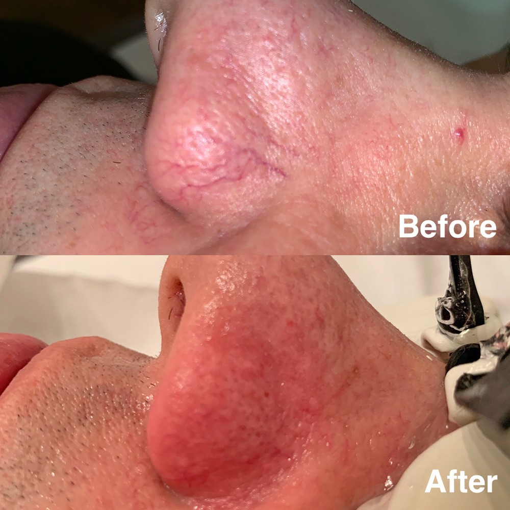Broken veins before and after treatment