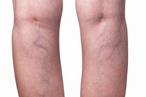 spataders op achterzijde benen