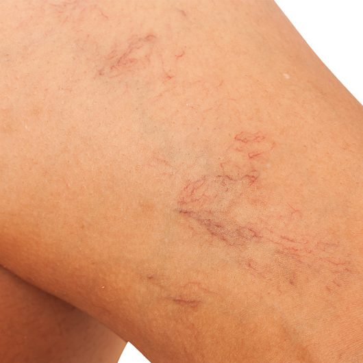 Mooie benen voor de zomer : weg met spataders!