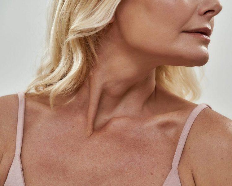 vrouw met zonbeschadiging