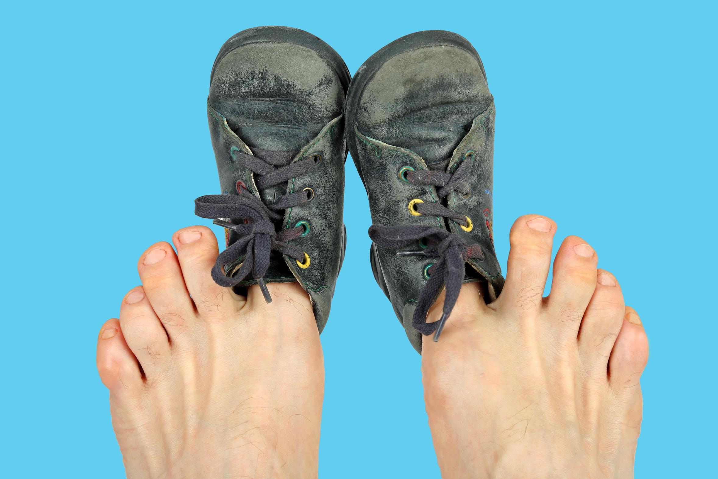 Viel zu kleine Schuhe