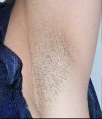 FÖRE efter hårborttagning1
