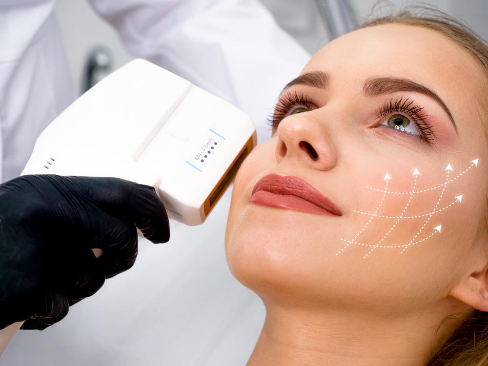 ansiktslyft med laser