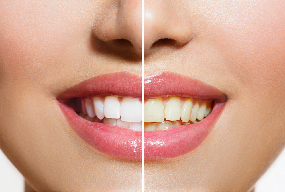 Tandblekning uppsala