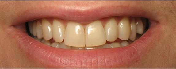 tandblekning-estetiklaser i uppsla1