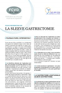 FICHE_SLEEVE-FCVD