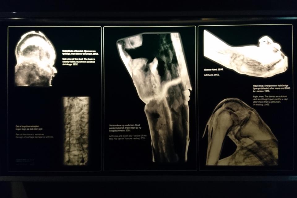 Фотографии сканирования костей скелета в музее Мосгорд