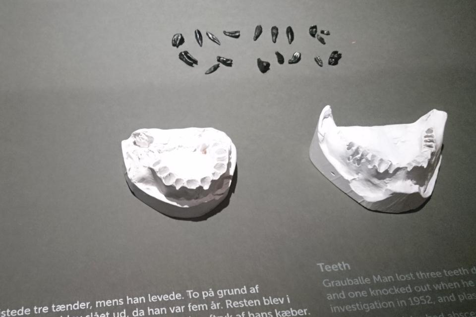 Гипсовый слепок челюсти и зубы человека из Граубалле