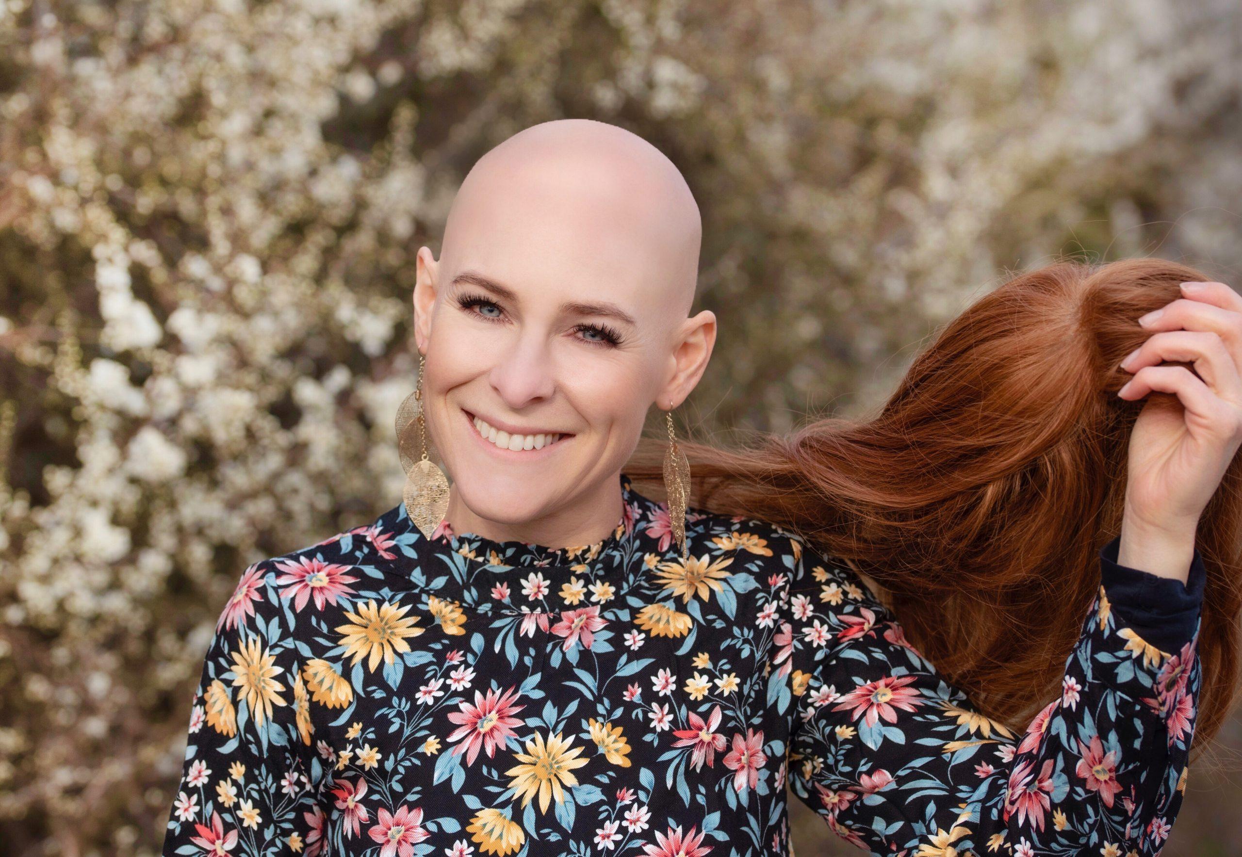 Alopecia- Wenn die Haare plötzlich ausfallen
