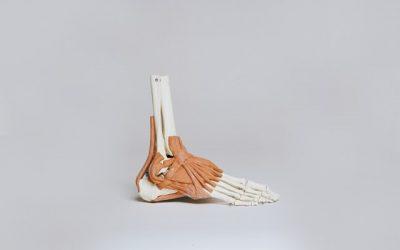 Fotledsstukningar del 2; Hur vet man hur illa foten är efter fotledsstukningen?