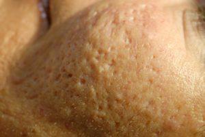 acnelittekens acne litteken icepick ijspriem
