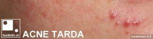 acne tarda late